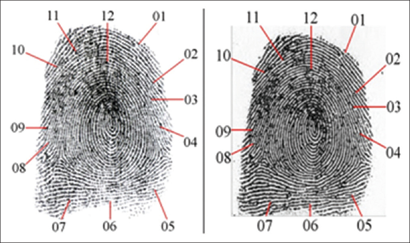 Figure 2: Matching from comparison between the reversal of the questioned fingerprint (left) and one from a criminal case stored in automated fingerprint identification systems (right)