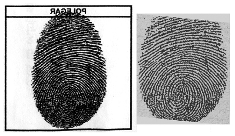 Figure 3: Reversal of a questioned fingerprint (left) and its correspondent from a criminal case of the state of Acre (right)