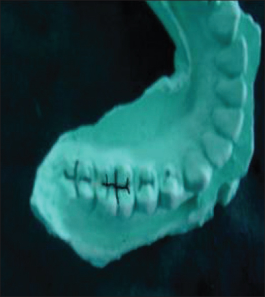 Figure  1: Occlusal groove pattern in mandibular first molar marked with Indian ink