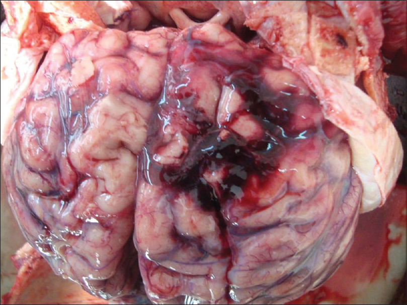 Figure 5: Lacerated brain with subdural and subarachnoid hemorrhages