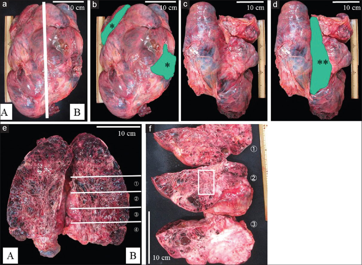 Figure 5: Macroscopic examinations of the liposarcoma, Case 2. An enormous tumor with solid and polycystic areas (10 kg, 40 cm × 25 cm × 11 cm). (a) The anterior side of the tumor (A: Right side, B: Left side). (b) The anterior side of the tumor. Greenish areas (*) showing the areas adjacent to the transverse colon. (c) The posterior side of the tumor. (d) The posterior side of the tumor. Greenish area (**) showing the area adjacent to the ascending colon. (e) Cross-section of this tumor (ƒñ-ƒó). (f) Cross-section of the tumor, showing whitish solid and reddish polycystic areas