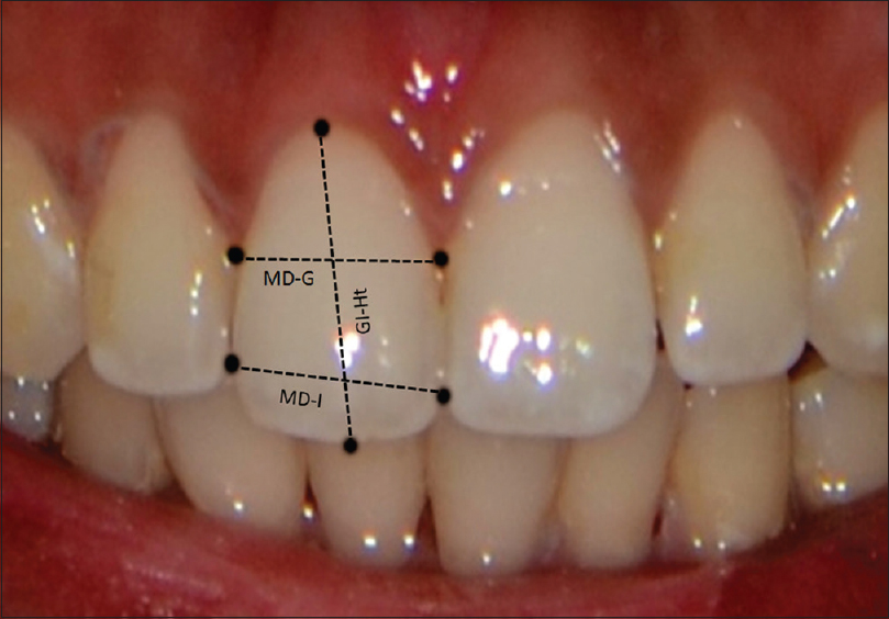 Morphometric Analysis Of Maxillary Central Incisor To Determine Its