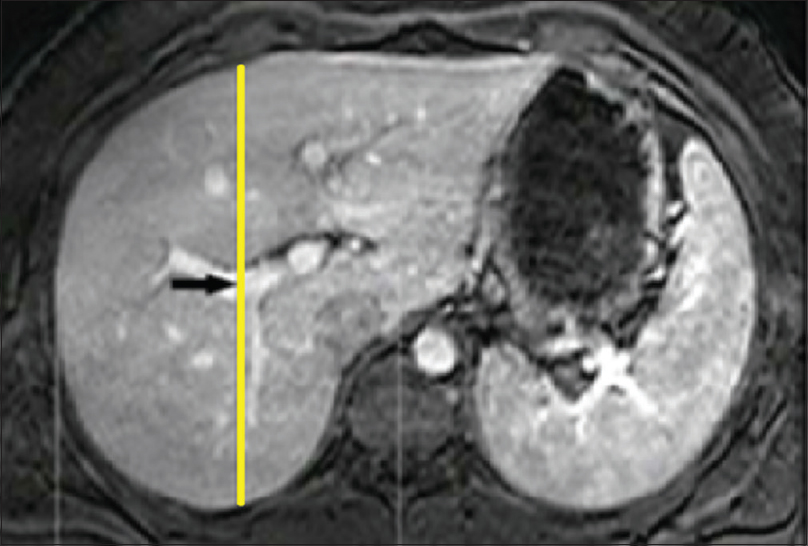 Figure 1: Magnetic resonance imaging of liver showing mid hepatic point dimension