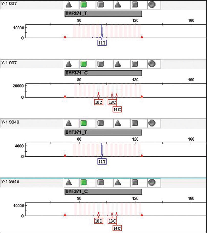 Figure 2: The typical electropherograms of 007 and 9948 control DNA for duplex polymerase chain reaction of DYF371T and DYF371C