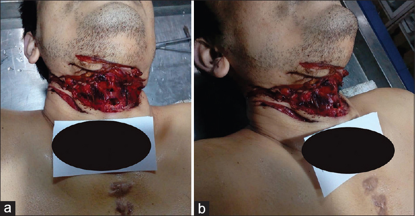 Figure 2: (a) Multiple sharp force injuries on the neck with hesitation marks (anterior view), (b) multiple sharp force injuries on the neck with hesitation marks (lateral view)