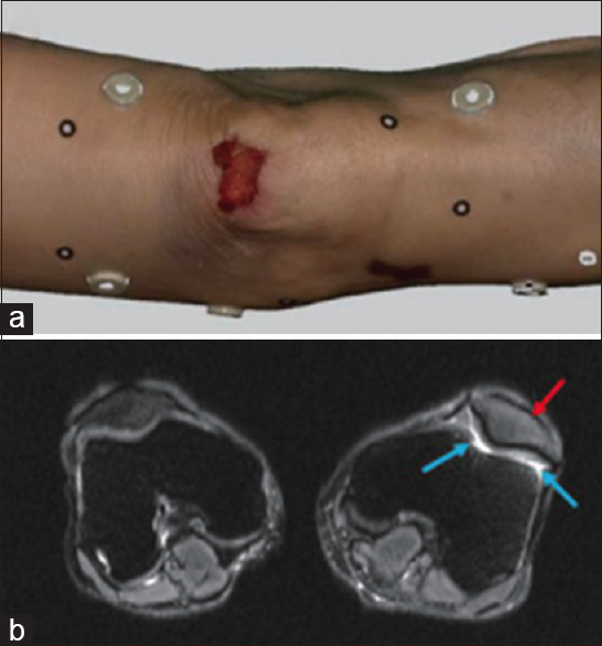 Figure 12: Left knee of a woman injured in a traffic accident: (a) Color model of the left knee generated using three-dimensional photogrammetry and optical surface scan. (b) magnetic resonance imaging shows patellar contusion (red arrows) and knee joint effusion (blue arrows)<sup>[21]</sup>