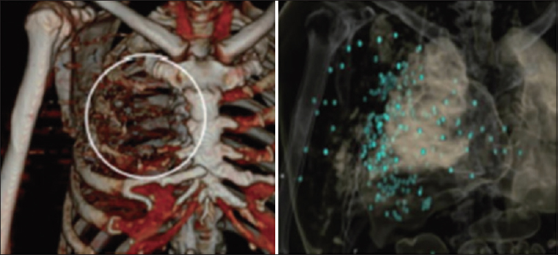 Figure 14: Left: computed tomography three-dimensional reconstruction shows fractures in right ribs 2–4 (white circles); Right: computed tomography three-dimensional reconstruction shows scattered bullets (blue-green)<sup>[24]</sup>
