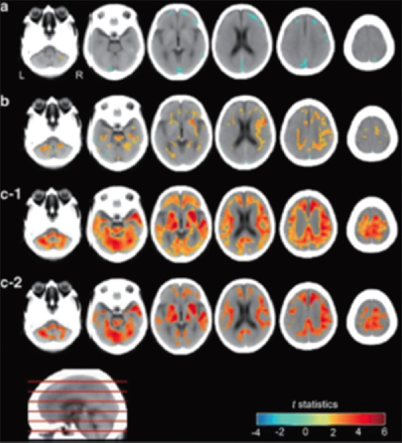 Figure 15: Computed tomography values of brain tissue after death divided into three groups according to the interval from death to computed tomography scan (a. 48–70 min, b. 71–120 min, and c. 121–433 min). Within 70 min of death, the gray matter computed tomography values decreased (cool color) with time; in contrast, the computed tomography values (warm color) that increased with time were observed mainly in the white matter, lenticular nucleus, and thalamus more than 120 min after death<sup>[27]</sup>