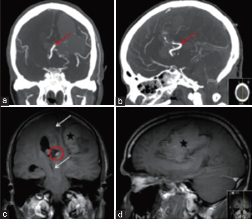 Figure 8: (a-c)Cranial computed tomography angiography and magnetic resonance angiography show cerebral artery malformation (red arrows and red circles), (c)midline deviation (white arrows),(c and d) and massive hemorrhage on the left side of the brain (black asterisks)<sup>[16]</sup>